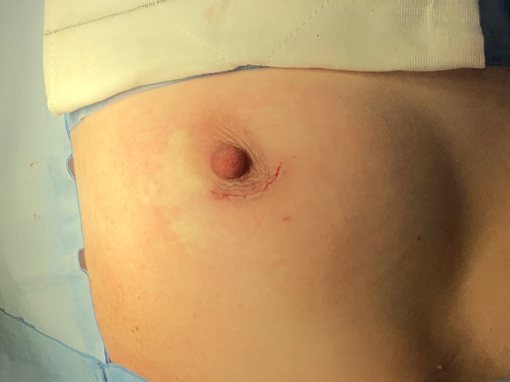 AFTER - BREAST CONSERVATION SURGERY