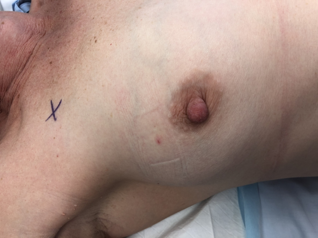 BEFORE - BREAST CONSERVATION SURGERY