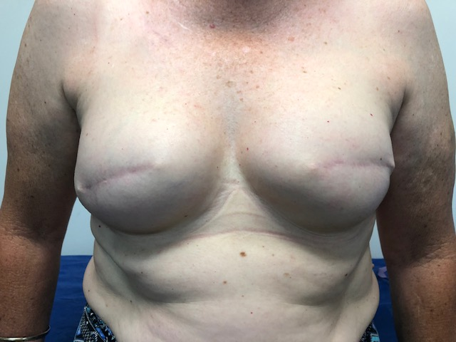 AFTER BREAST RECONSTRUCTION SURGERY
