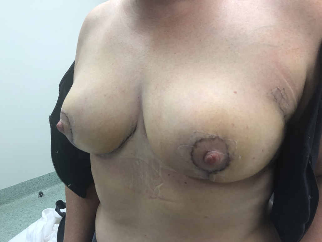 PATIENT 1 - AFTER ONCOPLASTIC SURGERY