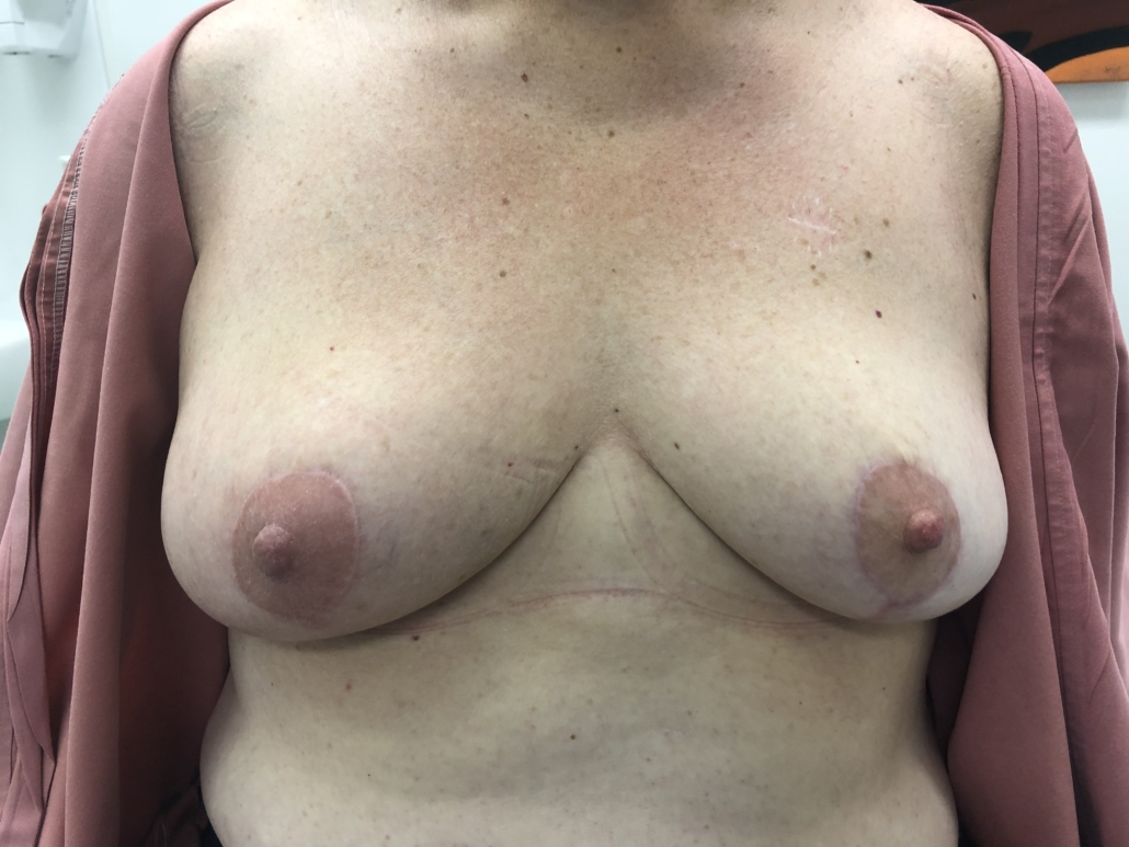 PATIENT 2 - AFTER ONCOPLASTIC SURGERY